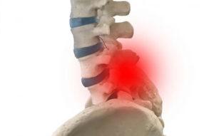 腰椎椎間板ヘルニアイメージ